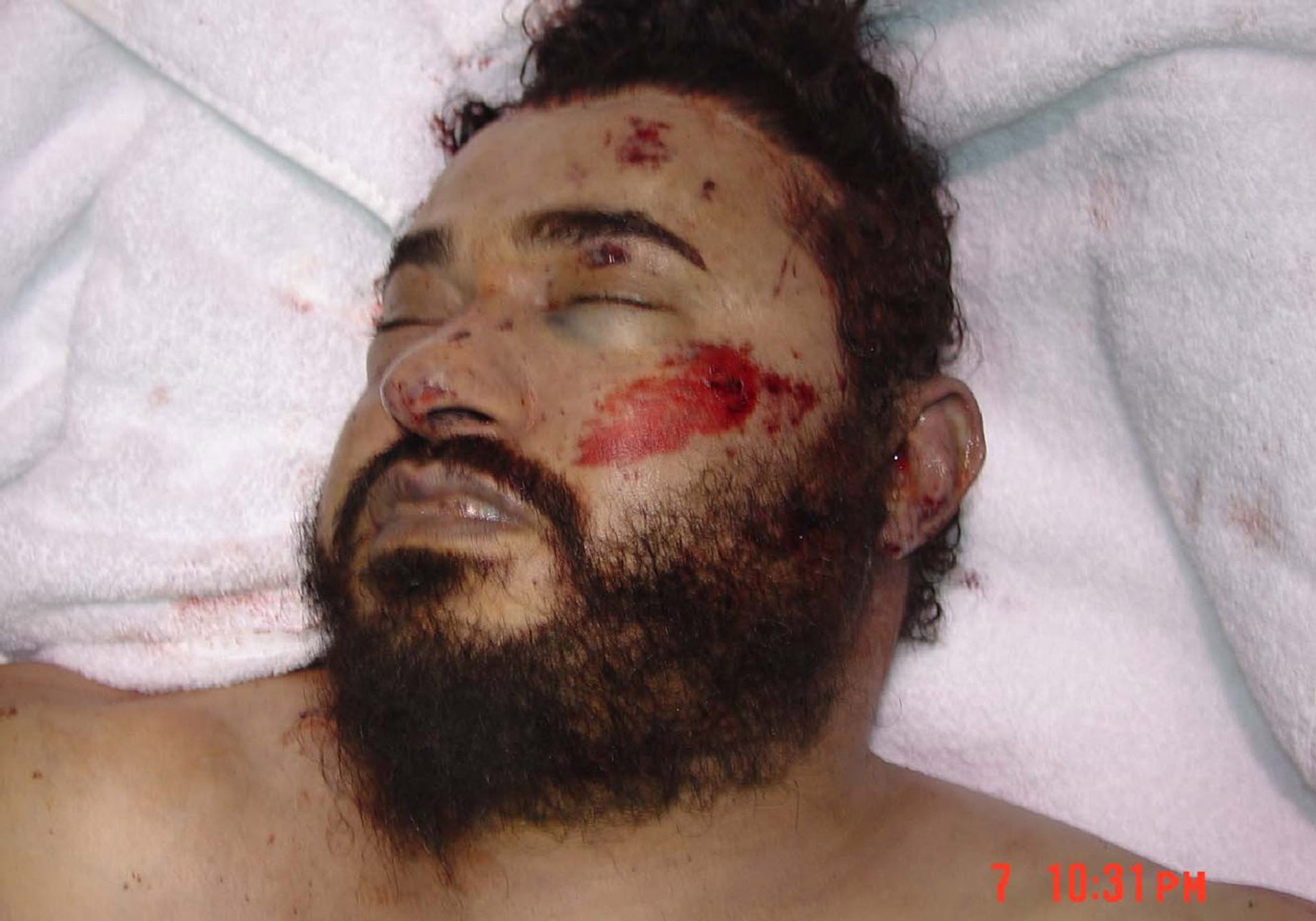 Zarqawi_dead_us_govt_photo_lg